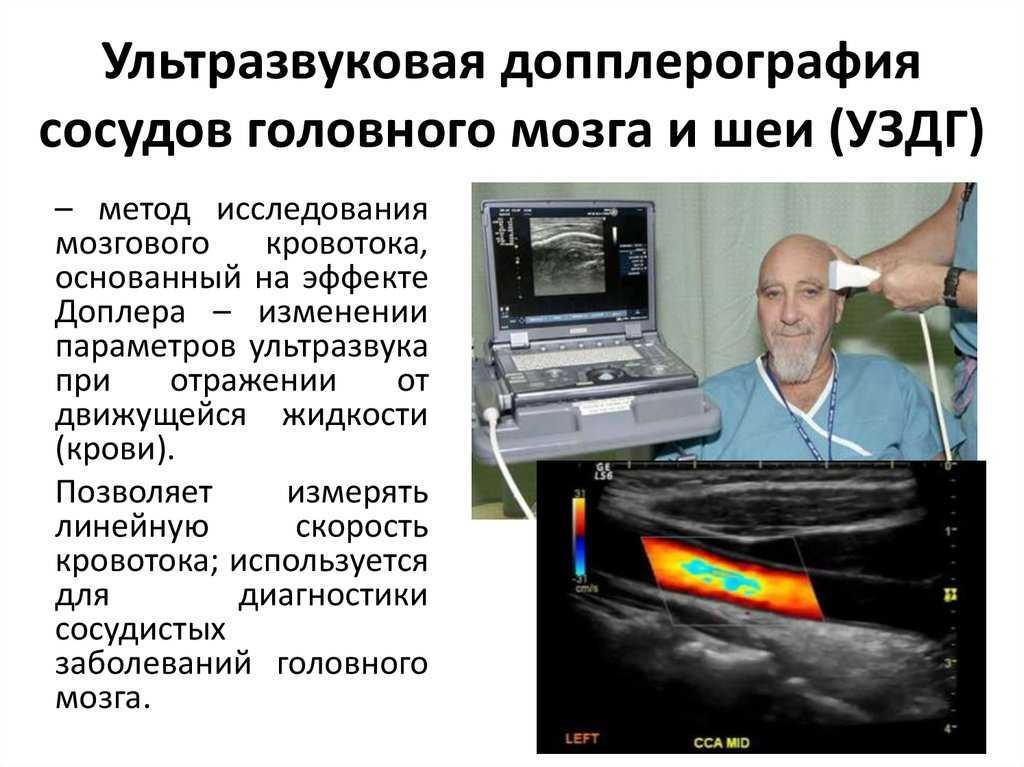 Уздг сосудов головы и шеи ребенку: как делают допплер шейного отдела, вредна ли допплерография