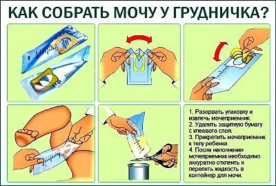 Как собрать мочу у грудничка