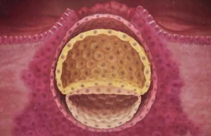 Поздняя имплантация эмбриона: к чему быть готовым