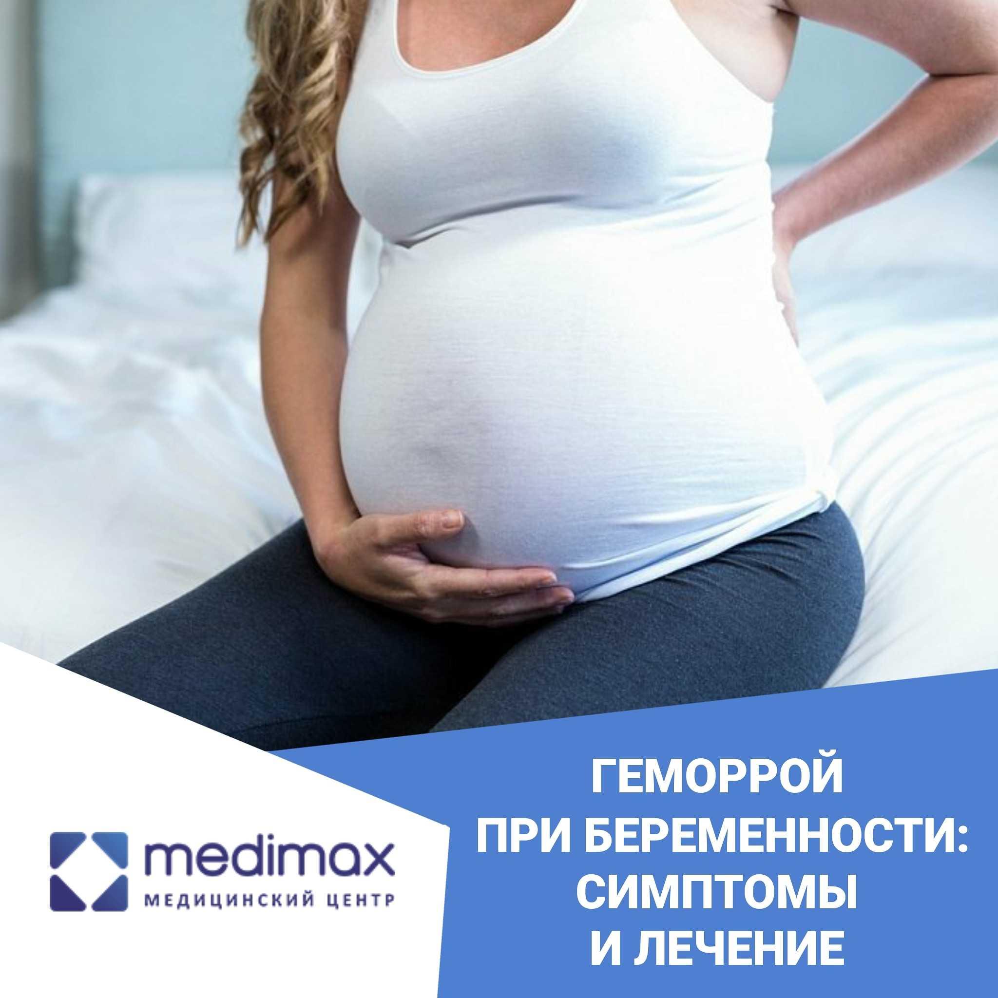 Чем лечить геморрой при беременности 3 триместр: свечи, мази, препараты и народные средства