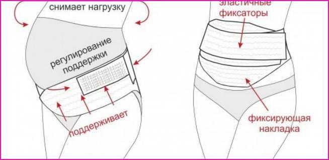 Бандаж для беременных - выбираем правильно