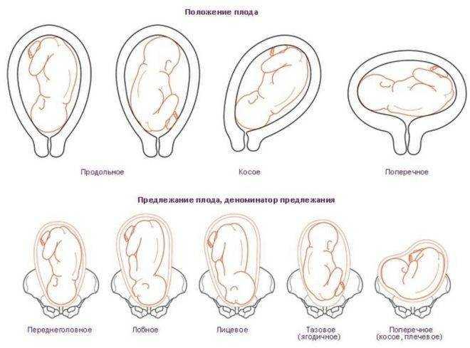 Беременность, роды и тазовое предлежание плода. как исправить? тазовое предлежание плода: переворот и кесарево сечение