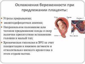 Отслойка плаценты (39 фото): признаки и симптомы отделения, причины преждевременной полной и частичной отслойки хориона во втором триместре при беременности, последствия для ребенка