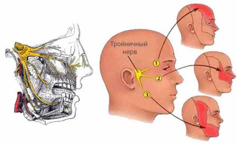 Межрёберный невроз и невроз лицевого нерва: симптомы и лечение. снимаем мышечное напряжение