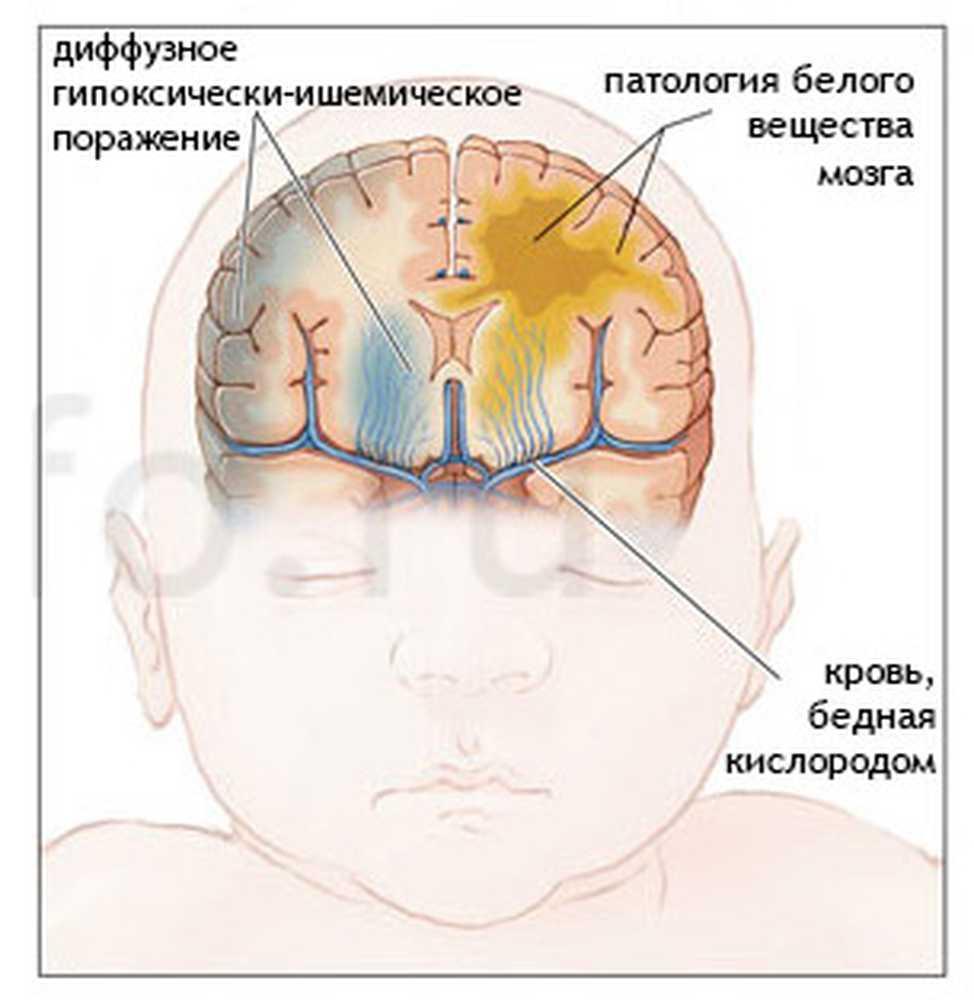Ишемия мозга 1 степени у новорожденных | firstмама