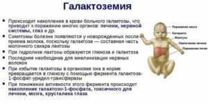 Галактоземия у новорожденных детей: симптомы, анализ, типы, лечение, диагностика, фото