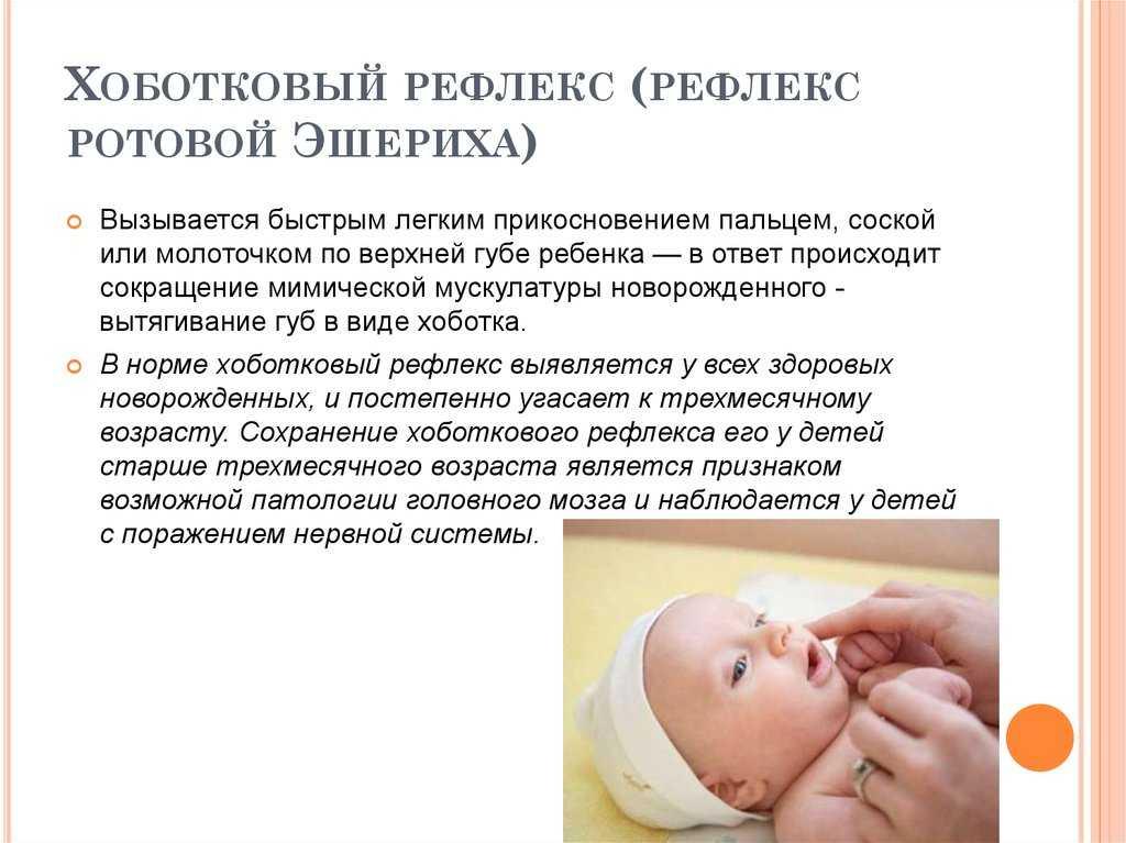 Нет глотательного рефлекса у новорожденного — про маму