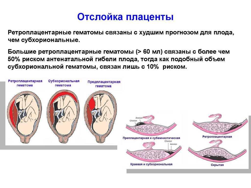 Когда формируется плацента при беременности, норма и патология развития