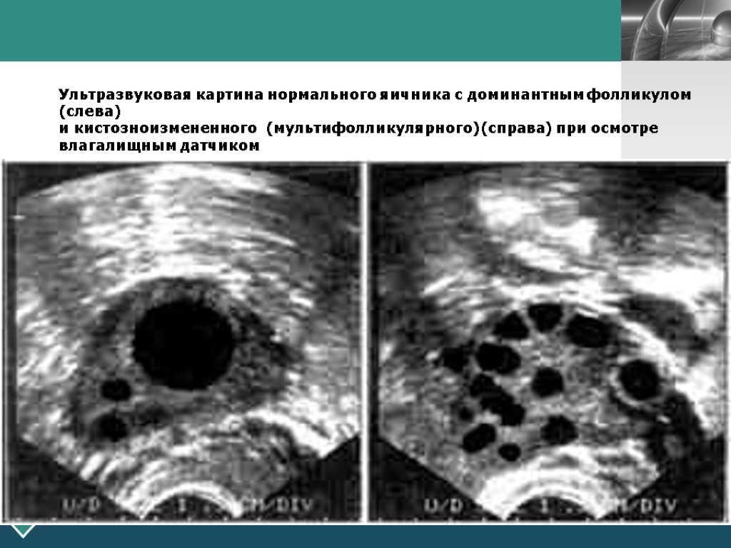 Доминантный фолликул: что это такое, в правом или левом яичнике, размеры доминирующих фолликулов по дням цикла. как выглядит на узи?