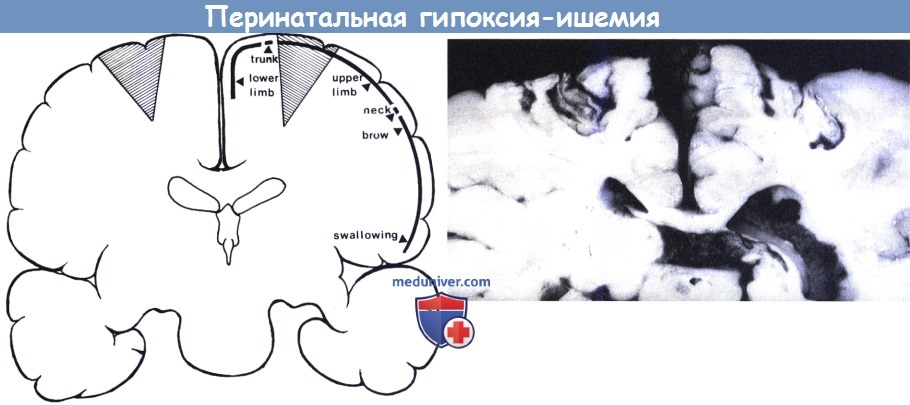 Гипоксия у новорожденных: лечение