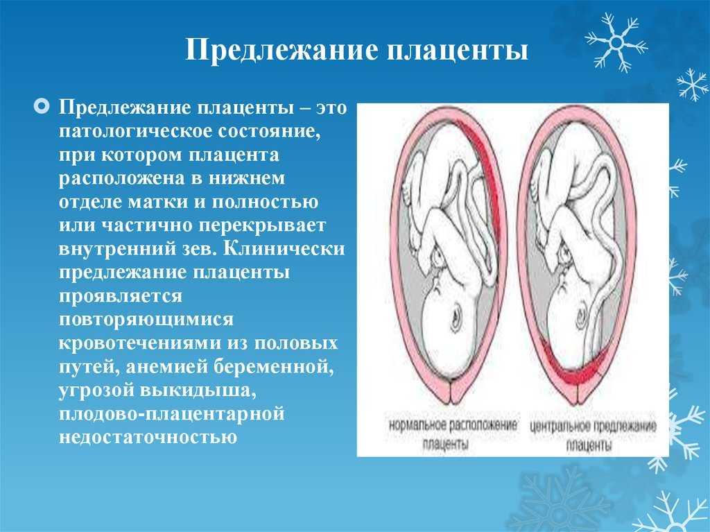 Плацента низко по передней стенке - беременность - страна мам