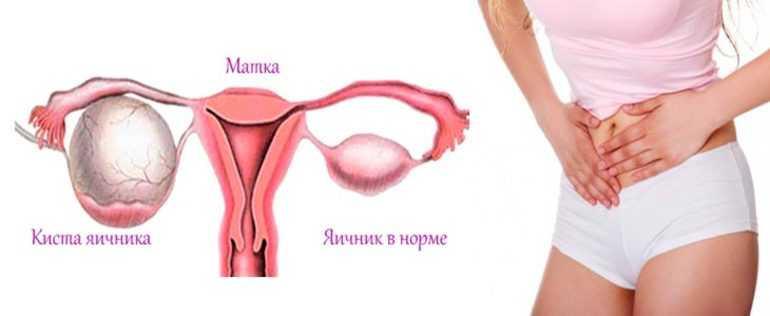 Болит яичник после овуляции: норма или признак патологии