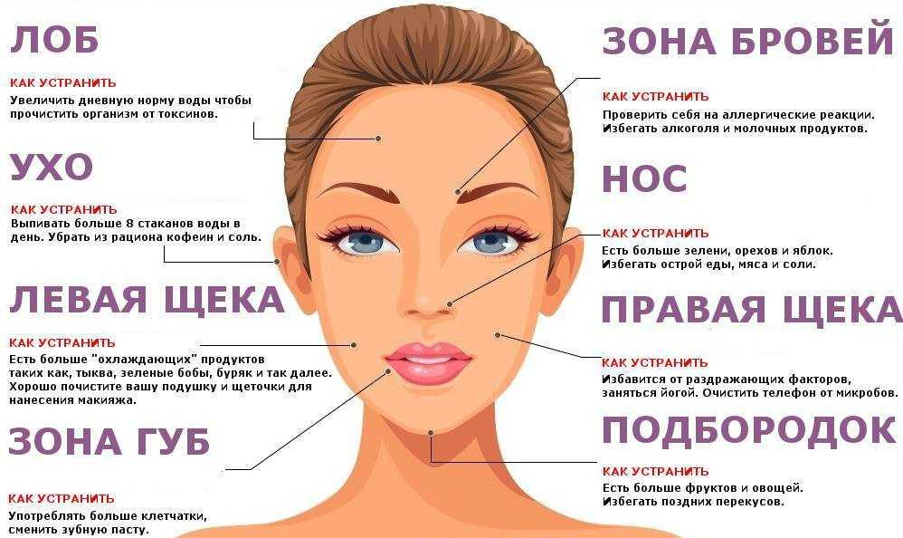 Психосоматика прыщей на лице и подбородке, лбу и шее, спине: причины фурункулов и акне у детей и женщин, высыпания у мужчин