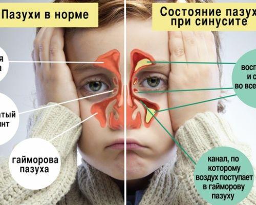 Психосоматика носа и носоглотки, причины и исцеление