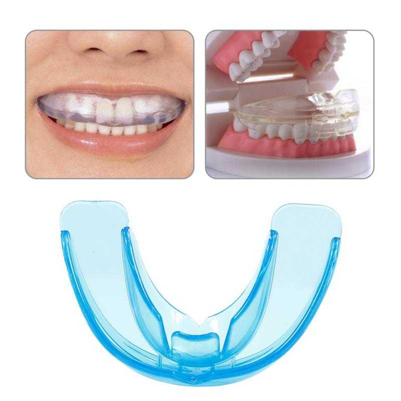 Пластины для выравнивания зубов – принцип действия в достижении идеальной улыбки