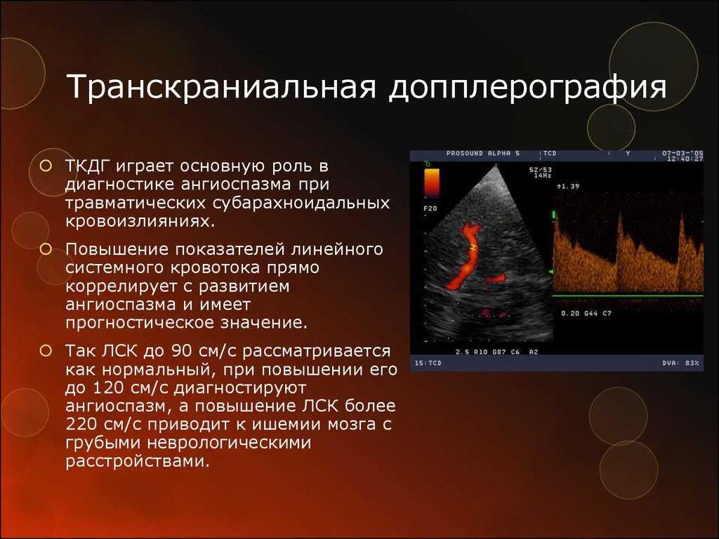 Узи нейросонография головного мозга: показания, подготовка, расшифровка