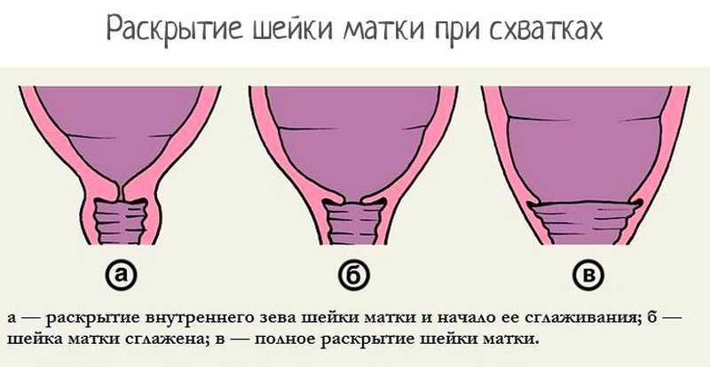 На сколько пальцев должна открыться матка при родах? на сколько сантиметров открывается шейка матки и как ускорить процесс?