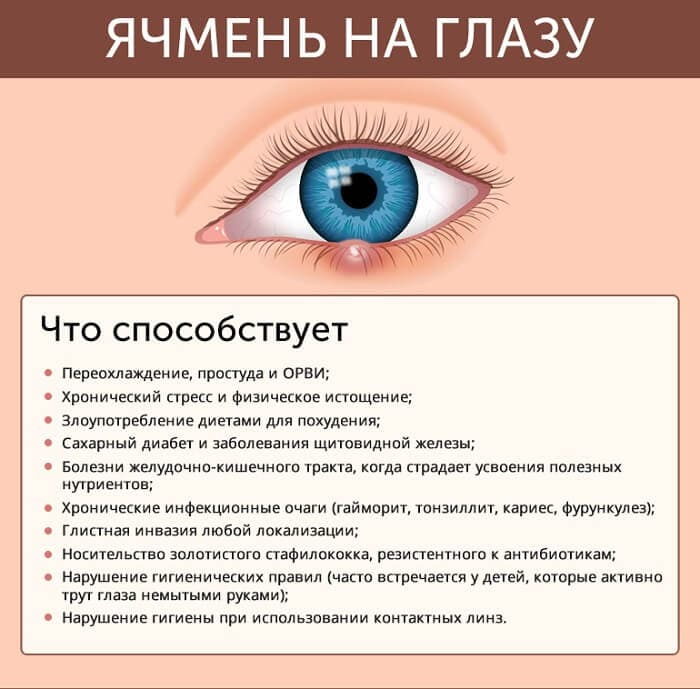 """Ячмень на глазу: психосоматика, медицинское название """"гордеолум"""""""