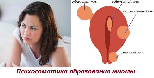 Причины возникновения миомы по психосоматике