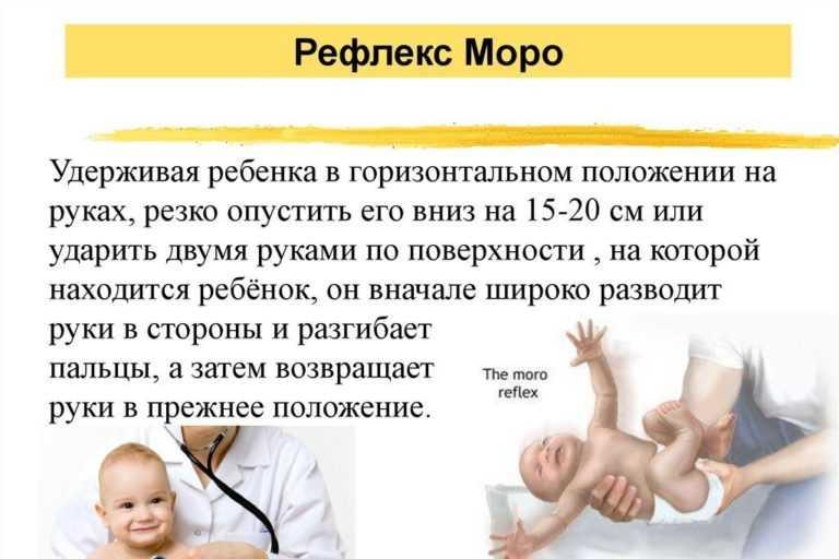 Формирование рефлексов новорожденного — таблица по месяцам и подробное описание