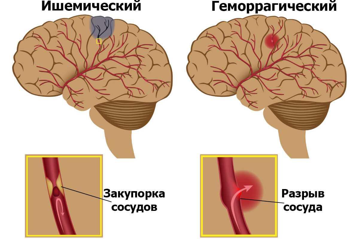 Психосоматика инсульта: причины ишемическиого и геморрагического инсультов