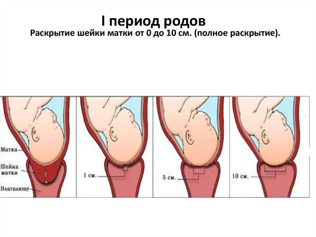 Раскрытие шейки матки: когда начнутся роды при раскрытии на 1 палец, как ускорить процесс - палочки ламинарии и медикаменты, особенности у первородящих и повторнородящих, признаки и ощущения, что делать при раскрытии на 1 или 2 пальца во втором триместре