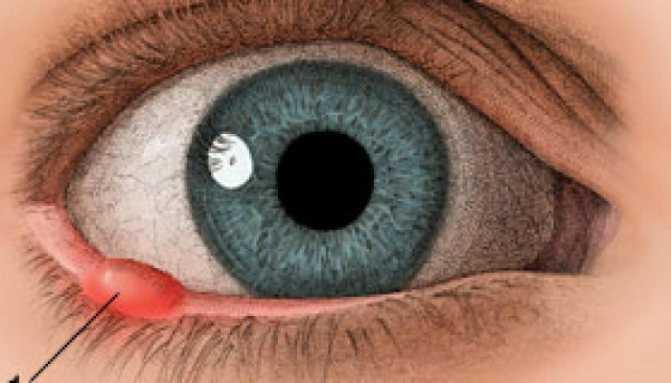 Опасен ли ячмень на глазу во время беременности