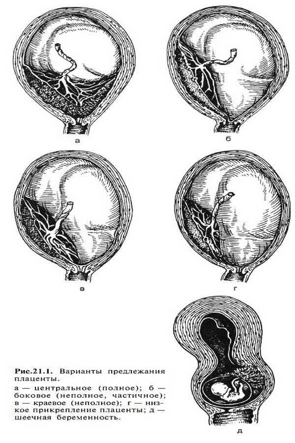 Предлежание плаценты при беременности