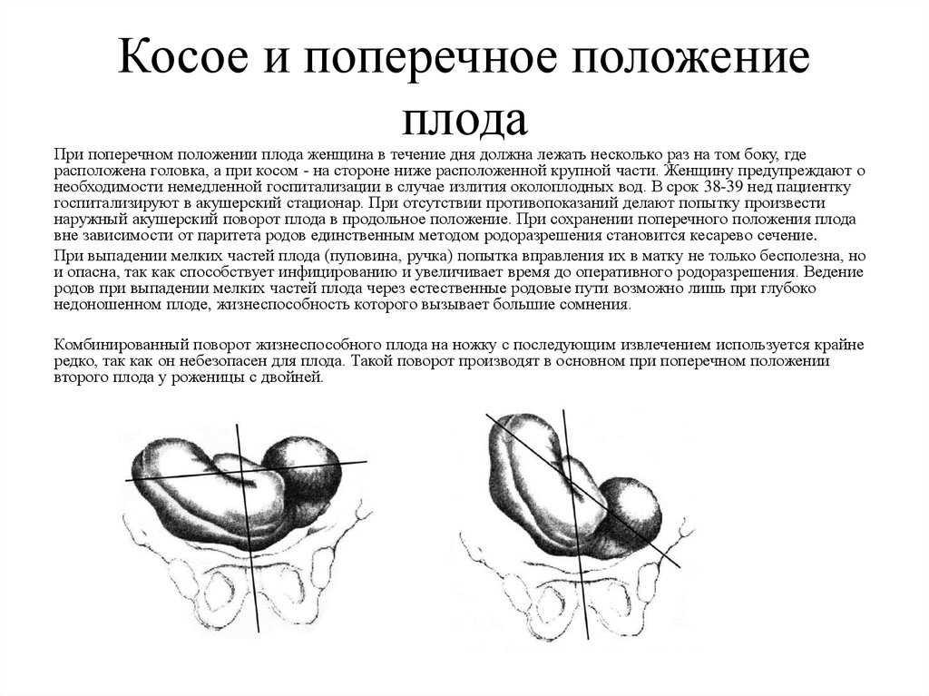 Поперечное положение плода (22 фото): поперечное предлежание при беременности, головное поперечное и косое со спинным положением ребенка, причины и упражнения