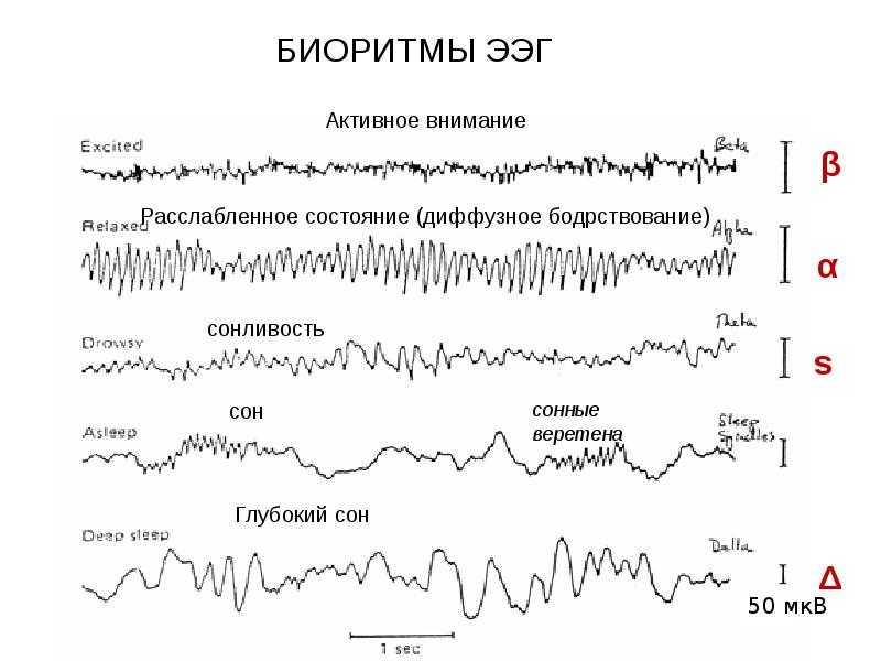 Особенности проведения ээг головного мозга ребенку