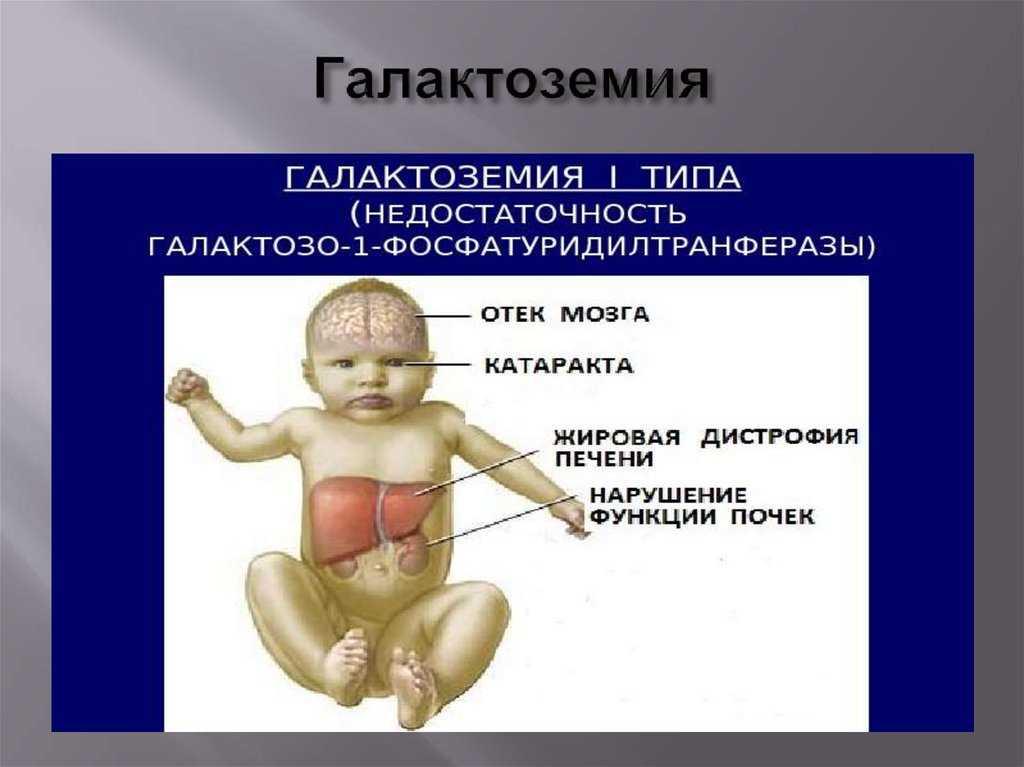 Галактоземия у детей: причины, симптомы, диагностика и лечение патологии