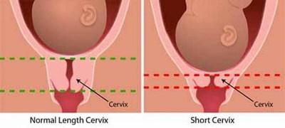 Цервикометрия при беременности - что это такое
