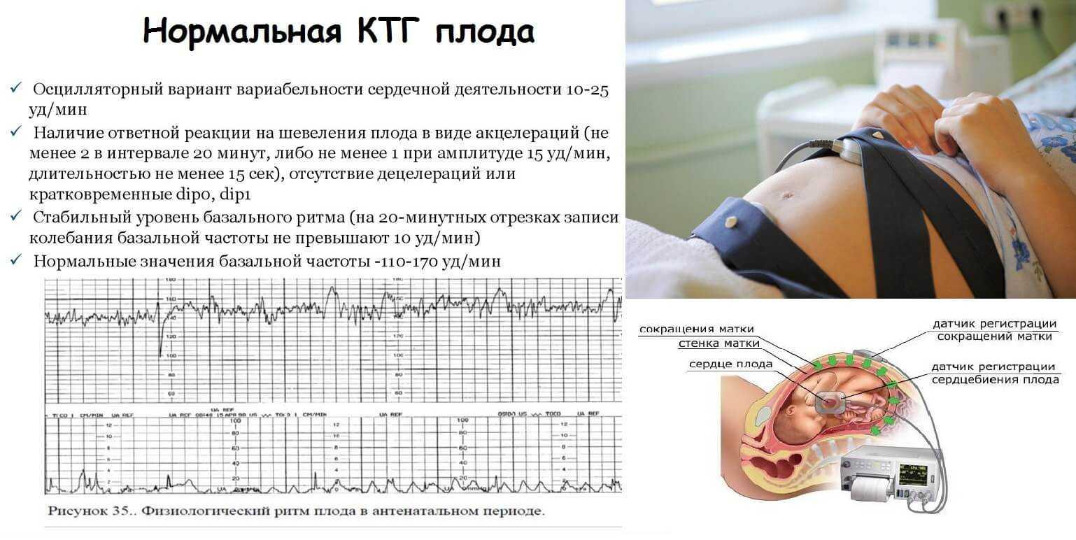Для чего ктг – что это такое, что показывает кардиотокография, как ее делают беременным, что такое начальные нарушения состояния плода, сколько длится и как подготовиться — оздоровительный spa-центр «панацея»