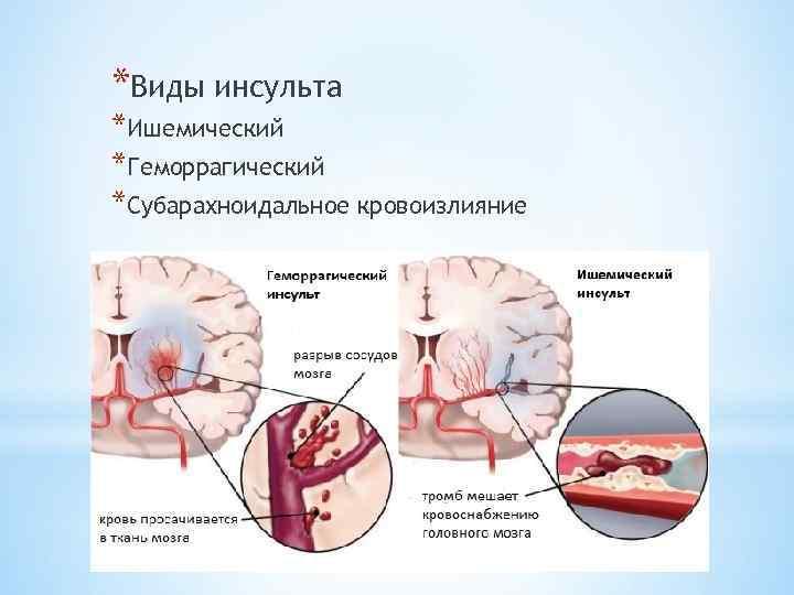 От чего бывает инсульт головного мозга и почему он происходит
