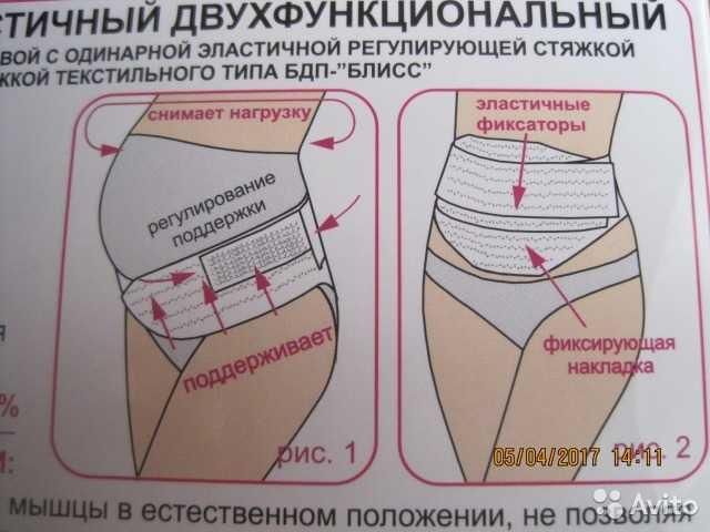 Как правильно и сколько носить бандаж после родов: виды и рекомендации :: syl.ru