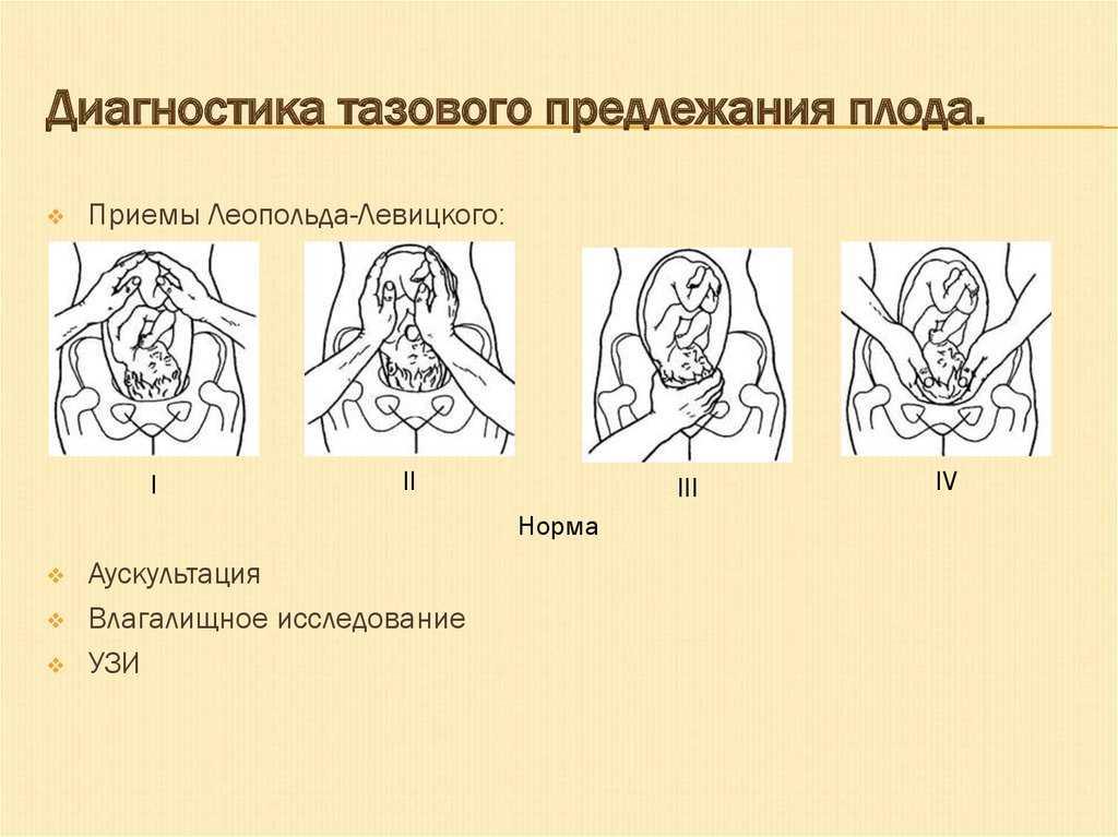 Лицевое предлежание плода: последствия для ребенка, роды и отзывы