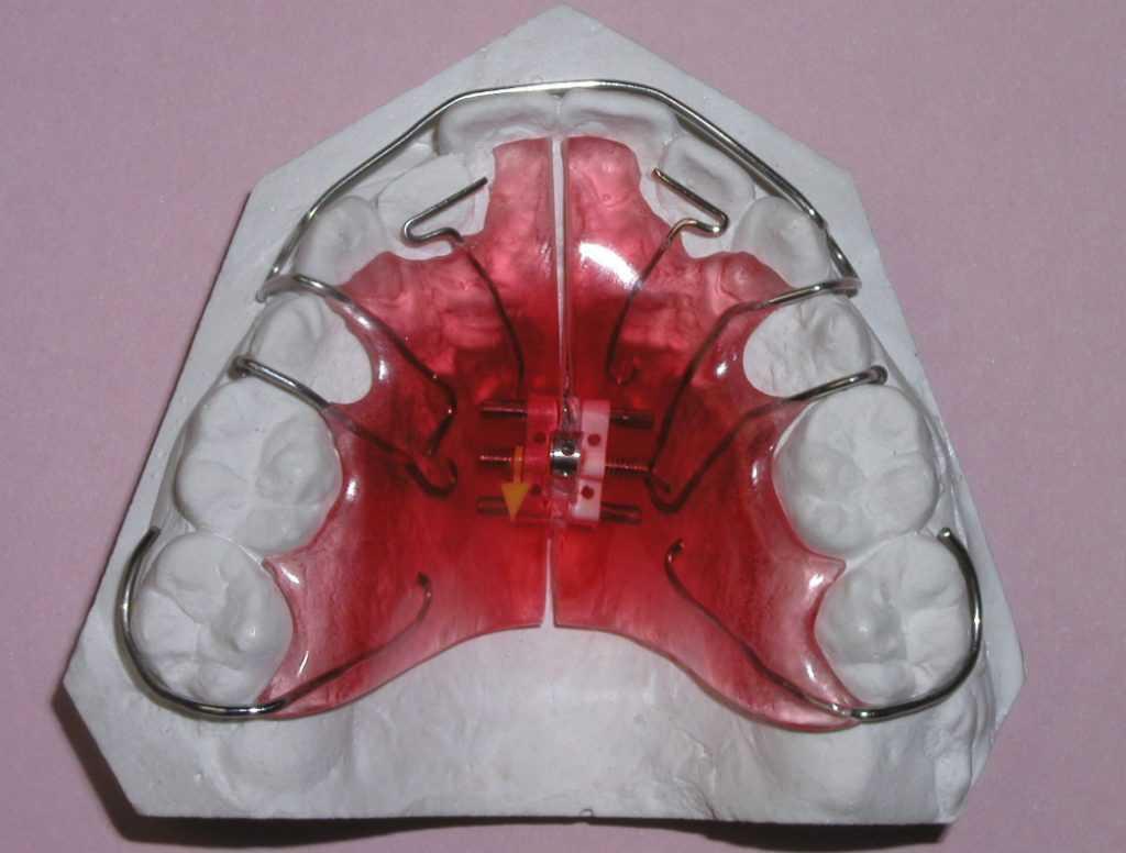 Выравнивание зубов у взрослых - цены на ортодонтические мероприятия