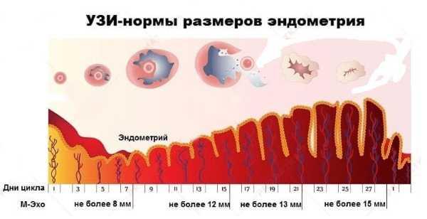 По каким причинам в яичниках образуется мало фолликулов? подробно рассмотрим данный вопрос в статье