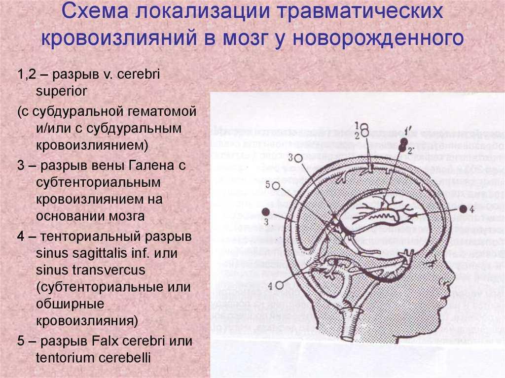 Кровоизлияние в мозг у новорожденного 2 степени последствия