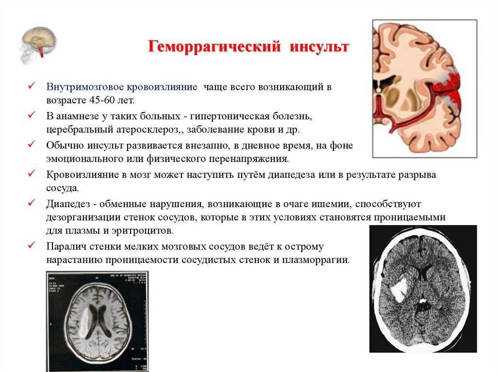 Ишемический и геморрагический инсульты: причины, симптомы, последствия и восстановительные мероприятия