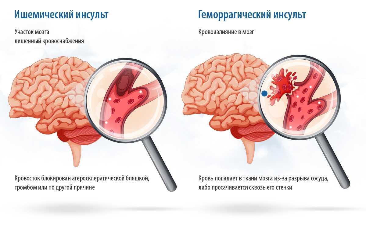Чем отличаются ишемический и геморрагический инсульты? какой вид приступа опаснее?