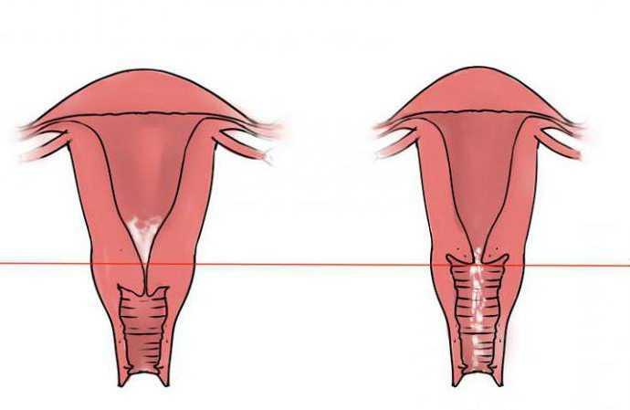 Какой должна быть шейка матки при беременности на ранних сроках?