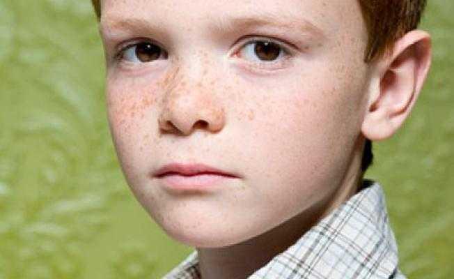Синдром аспергера: симптомы и признаки заболевания, диагностика и лечение недуга