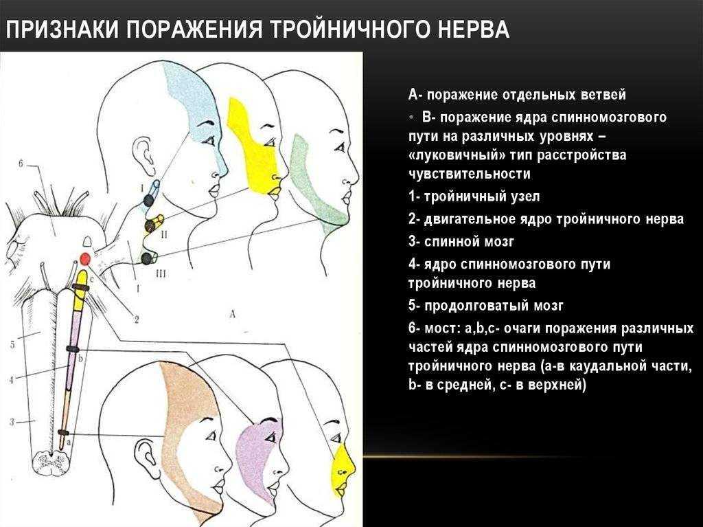 Невралгия ушного узла (нерва): причины и факторы риска, симптомы, диагностика и лечение