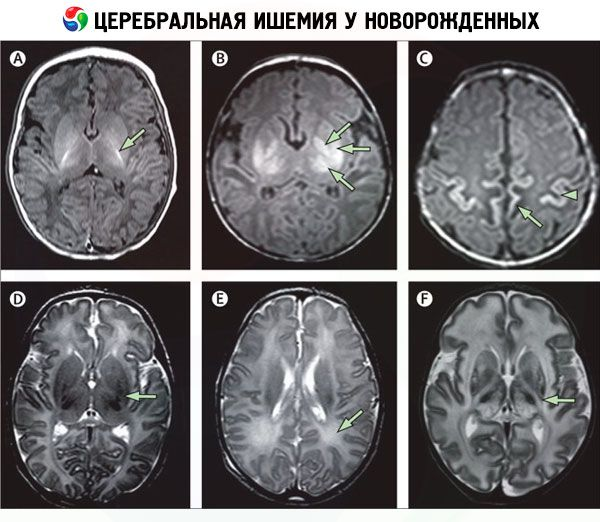 Незрелость коры головного мозга ребенка - здоровыйребенок