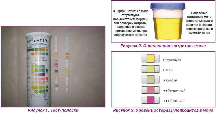 Оранжевая моча: причины мочи оранжевого цвета у женщин и мужчин, ребенка, признаки и лечение | mfarma.ru