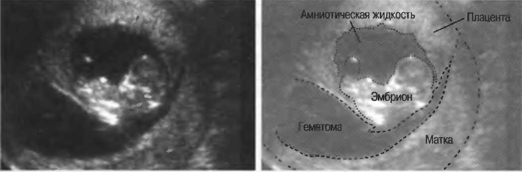 Ретрохориальная гематома при беременности: причины и лечение