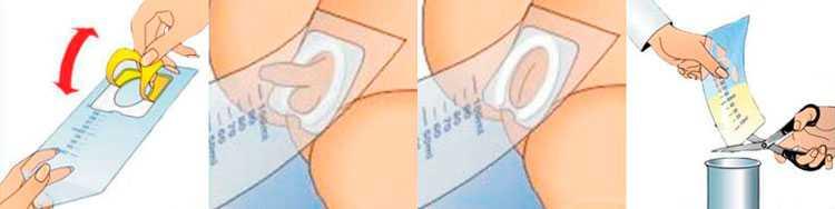 Как собирать мочу у грудничка девочки/мальчика, ребенка 1-2 года правильно на общий анализ, по нечипоренко, зимничкому, через мочеприемник, в баночку, за сколько часов