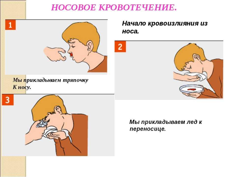 Кровь из носа у детей: причины и лечение, особенности частых проявлений, первая помощь и средства, помогающие остановить носовое кровотечение