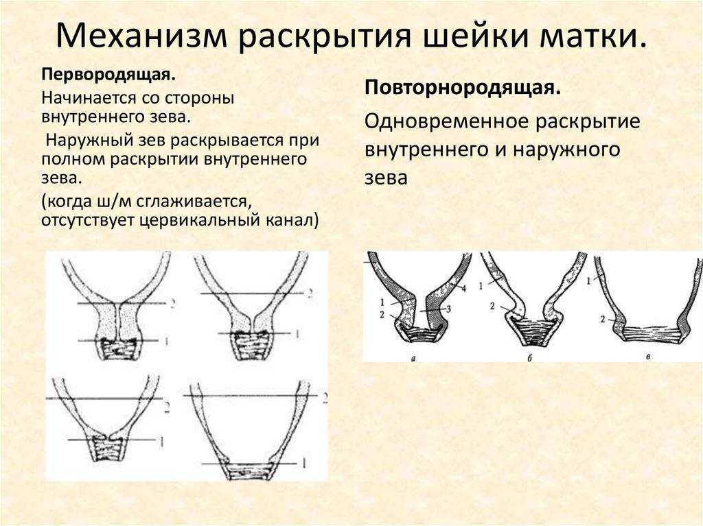 Как ускорить процесс родов: этапы раскрытия шейки матки, методы стимуляции на разных сроках